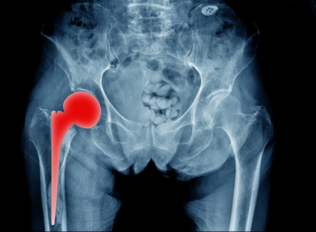 Stryker Orthopedics Opposing Motion to Consolidate Hip Implant Lawsuits